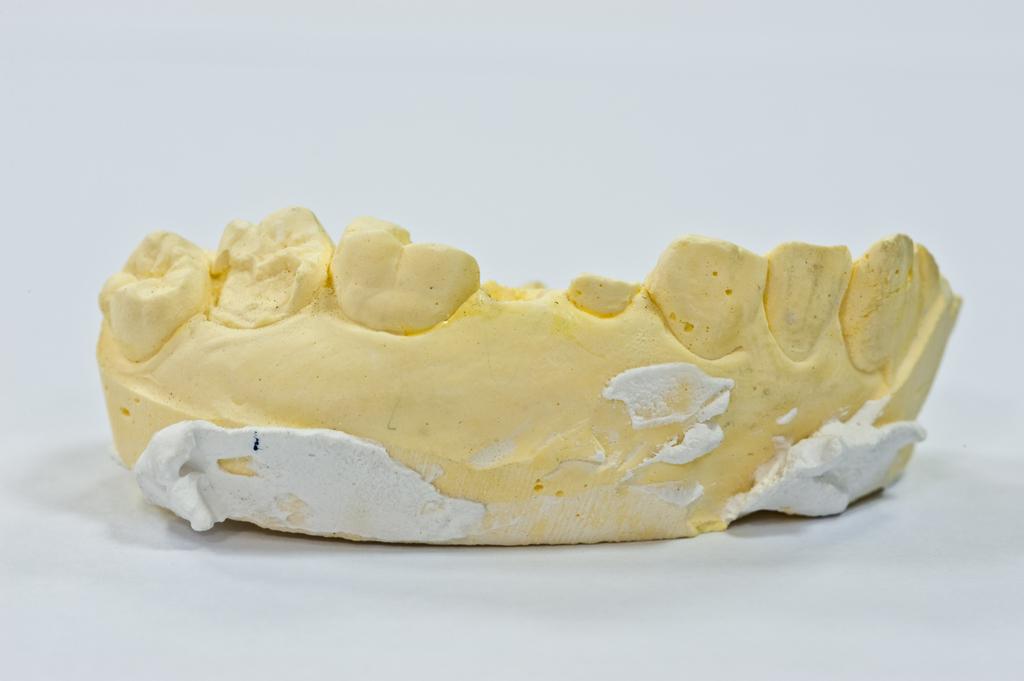 牙齒矯正是否要用骨釘比較好?骨釘的用途是什麼?