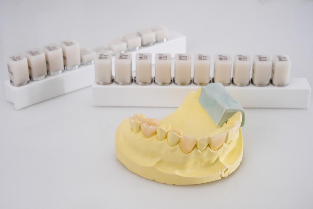 舒眠植牙後要注意這些事項,保護口腔健康!