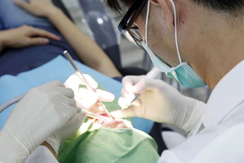 洗牙是怎麼進行的?牙周刮治跟洗牙是一樣的嗎?