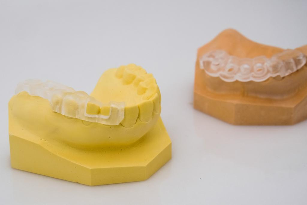 植牙知識分享:原來缺幾顆牙會影響選擇時類別!?