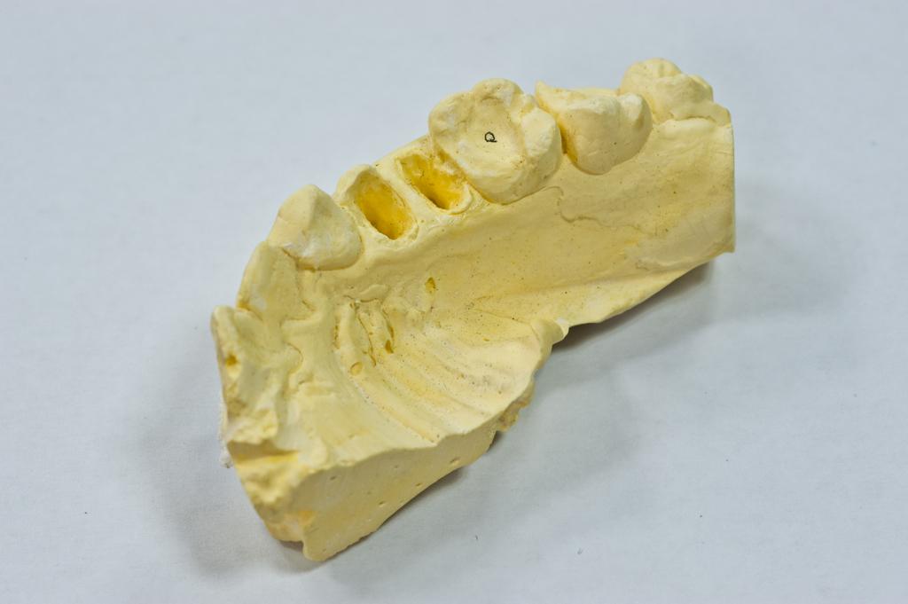 牙齒美白大百科:想要有亮白美齒嗎?帶你了解冷光美白的原理!