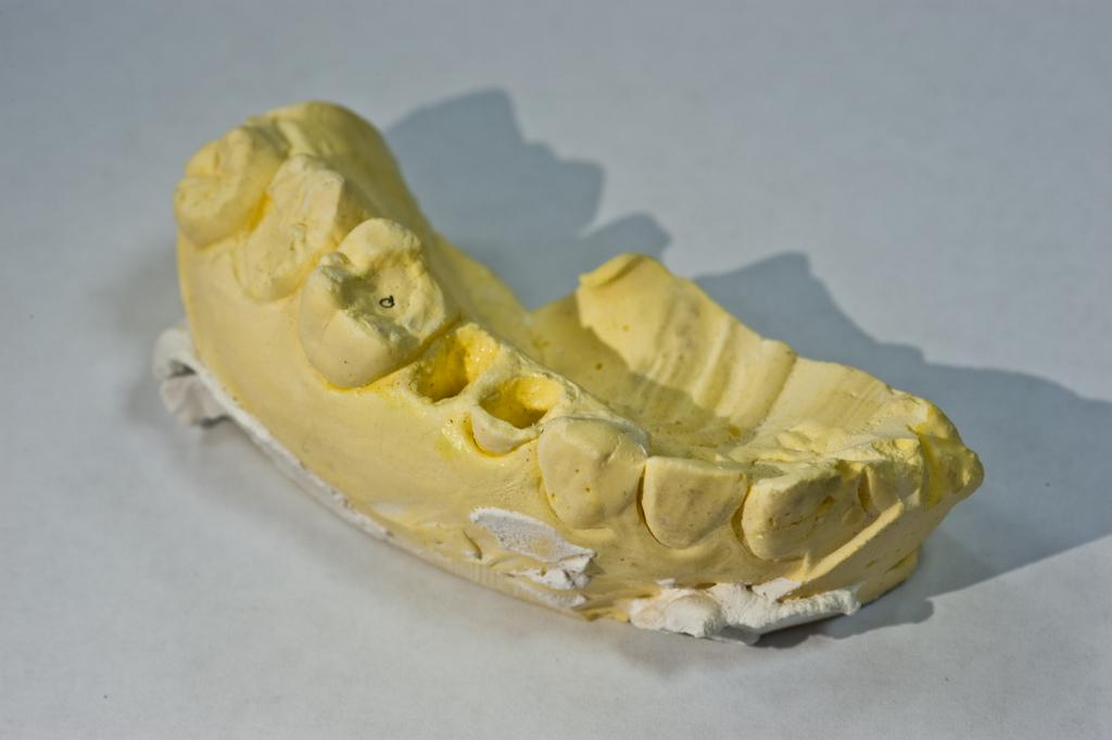隱形矯正 牙齒 價格