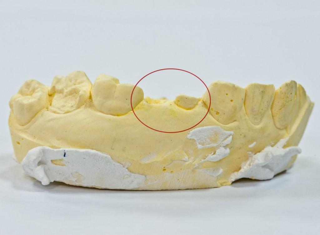 3D 銀粉,樹脂 銀粉,樹脂 價格,樹脂 缺點,牙套 樹脂,牙套 3D,費用 牙套,齒雕 樹脂,3D 費用,缺點 缺點