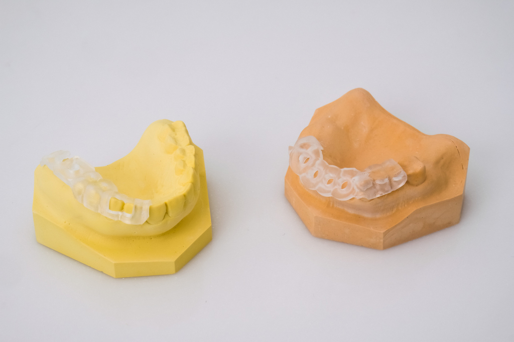 全瓷牙冠關係到自己的牙齒健康以及笑容美觀,這4件事值得在訂做時留意!