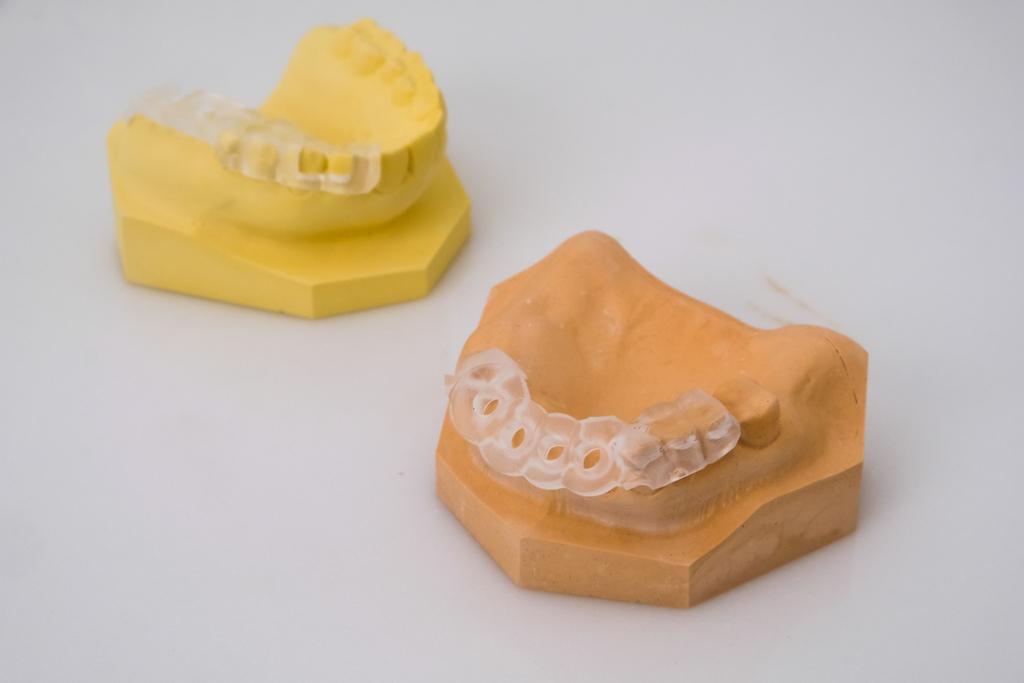 齒雕 銀粉,3D 牙套,費用 牙套,費用 樹脂,銀粉 費用,缺點 銀粉,樹脂 牙套,缺點 3D,價格 價格,缺點 牙套