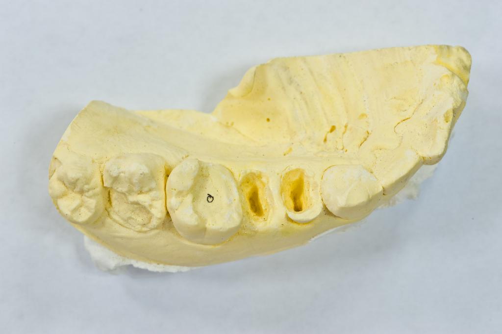 [小知識] 蛀牙的原因和日常作息息息相關,種類區分為這三種
